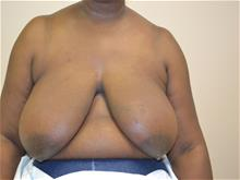 Breast Reconstruction Before Photo by Joe Griffin, MD; Florence, SC - Case 29394