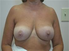Breast Reduction After Photo by Joe Griffin, MD; Florence, SC - Case 29396
