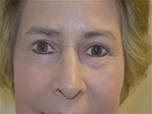 Eyelid Surgery After Photo by Joe Griffin, MD; Florence, SC - Case 29397