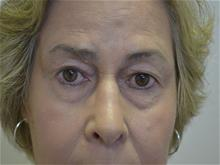 Eyelid Surgery Before Photo by Joe Griffin, MD; Florence, SC - Case 29397