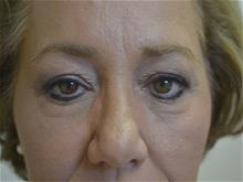 Eyelid Surgery Before Photo by Joe Griffin, MD; Florence, SC - Case 29398