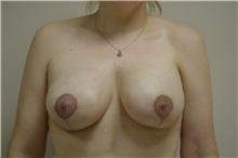 Breast Augmentation After Photo by Joe Griffin, MD; Florence, SC - Case 33146
