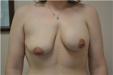 Breast Augmentation Before Photo by Joe Griffin, MD; Florence, SC - Case 33146
