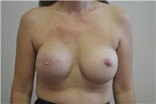Breast Reconstruction After Photo by Joe Griffin, MD; Florence, SC - Case 33150