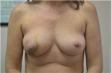 Breast Reconstruction Before Photo by Joe Griffin, MD; Florence, SC - Case 33150