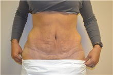 Tummy Tuck After Photo by Joe Griffin, MD; Florence, SC - Case 33151