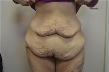 Tummy Tuck Before Photo by Joe Griffin, MD; Florence, SC - Case 33151