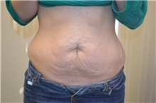 Tummy Tuck Before Photo by Joe Griffin, MD; Florence, SC - Case 33154