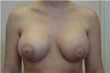 Breast Augmentation After Photo by Joe Griffin, MD; Florence, SC - Case 33157
