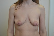Breast Augmentation Before Photo by Joe Griffin, MD; Florence, SC - Case 33157