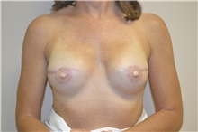 Breast Reconstruction After Photo by Joe Griffin, MD; Florence, SC - Case 33177