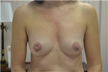 Breast Reconstruction Before Photo by Joe Griffin, MD; Florence, SC - Case 33177