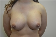 Breast Augmentation After Photo by Joe Griffin, MD; Florence, SC - Case 33516