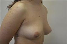Breast Augmentation Before Photo by Joe Griffin, MD; Florence, SC - Case 33516