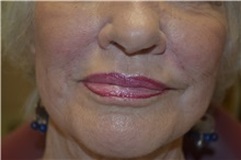 Dermal Fillers After Photo by Joe Griffin, MD; Florence, SC - Case 33517