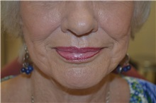 Dermal Fillers Before Photo by Joe Griffin, MD; Florence, SC - Case 33517