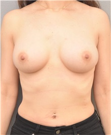 Breast Augmentation After Photo by Arthur Jabs, MD, PhD; Bethesda, MD - Case 37646