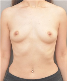 Breast Augmentation Before Photo by Arthur Jabs, MD, PhD; Bethesda, MD - Case 37646