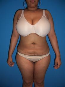 Liposuction After Photo by Robert Herbstman, MD, FACS; East Brunswick, NJ - Case 29376