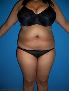 Liposuction Before Photo by Robert Herbstman, MD, FACS; East Brunswick, NJ - Case 29376