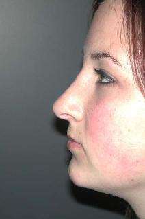 Nose Surgery Picture