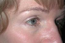 Eyelid Surgery After Photo by Richard Rand, MD; Bellevue, WA - Case 5750