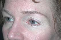 Eyelid Surgery Before Photo by Richard Rand, MD; Bellevue, WA - Case 5750