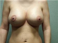 Breast Lift After Photo by Benjamin Van Raalte, MD; Davenport, IA - Case 28521