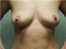 Breast Lift Before Photo by Benjamin Van Raalte, MD; Davenport, IA - Case 28521