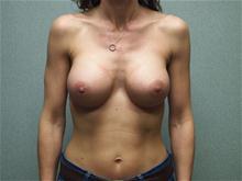 Breast Augmentation After Photo by Benjamin Van Raalte, MD; Davenport, IA - Case 28523