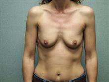 Breast Augmentation Before Photo by Benjamin Van Raalte, MD; Davenport, IA - Case 28523