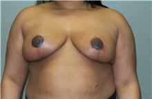 Breast Reduction After Photo by Benjamin Van Raalte, MD; Davenport, IA - Case 35992