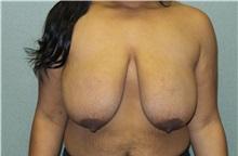Breast Reduction Before Photo by Benjamin Van Raalte, MD; Davenport, IA - Case 35992