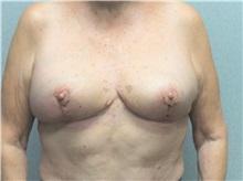 Breast Reduction After Photo by Benjamin Van Raalte, MD; Davenport, IA - Case 35997