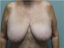 Breast Reduction Before Photo by Benjamin Van Raalte, MD; Davenport, IA - Case 35997