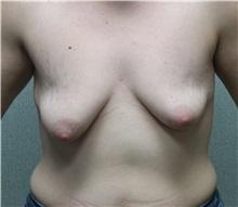 Breast Lift Before Photo by Benjamin Van Raalte, MD; Davenport, IA - Case 36000