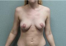 Breast Lift After Photo by Benjamin Van Raalte, MD; Davenport, IA - Case 36003