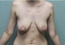 Breast Lift Before Photo by Benjamin Van Raalte, MD; Davenport, IA - Case 36003
