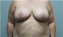 Breast Lift After Photo by Benjamin Van Raalte, MD; Davenport, IA - Case 36004