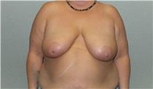 Breast Lift Before Photo by Benjamin Van Raalte, MD; Davenport, IA - Case 36004