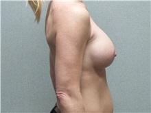Breast Augmentation After Photo by Benjamin Van Raalte, MD; Davenport, IA - Case 36676