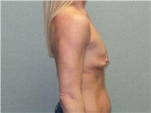 Breast Augmentation Before Photo by Benjamin Van Raalte, MD; Davenport, IA - Case 36676
