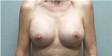 Breast Augmentation After Photo by Benjamin Van Raalte, MD; Davenport, IA - Case 36677