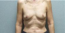 Breast Augmentation Before Photo by Benjamin Van Raalte, MD; Davenport, IA - Case 36677