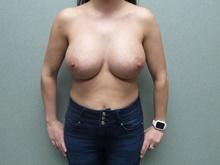 Breast Augmentation After Photo by Benjamin Van Raalte, MD; Davenport, IA - Case 38907