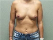 Breast Augmentation Before Photo by Benjamin Van Raalte, MD; Davenport, IA - Case 38907