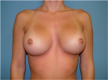 Breast Augmentation After Photo by Ram Kalus, MD; Mount Pleasant, SC - Case 30640