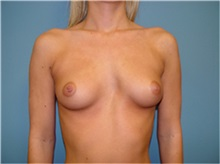 Breast Augmentation Before Photo by Ram Kalus, MD; Mount Pleasant, SC - Case 30640