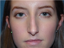 Rhinoplasty Before Photo by Ram Kalus, MD; Mount Pleasant, SC - Case 30666