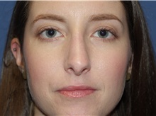 Rhinoplasty After Photo by Ram Kalus, MD; Mount Pleasant, SC - Case 30667